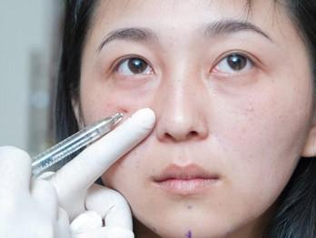 瑞蓝(玻尿酸)填充泪沟的原理   上海华美的专家解释说,注射瑞蓝(玻尿酸)填泪沟方法很简单,其治疗原则就是将凹陷处的地方填补起来,尤其对于泪沟不很严重的人效果非常好,保持时间约为4-8个月。虽然效果并非,但由于注射玻尿酸时间短,恢复时间短、副作用少,获得许多人的喜爱。   现在快速、安全、无痛的医学治疗方法主要是注射玻尿酸,采用玻尿酸填充去除泪沟是临床上运用@HM广泛的,注射瑞蓝(玻尿酸)改善泪沟没有副作用,安全自然,对人体也没有危害,治疗过程10-20分钟,治疗不出血不动刀。   上海华美瑞蓝(玻尿